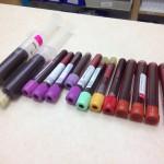 Que Exámenes de Laboratorio se Recomiendan para Alguien que Usa Esteroides?